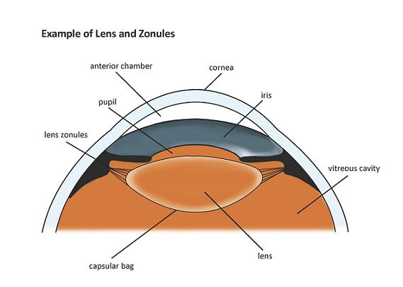 Basic Eye Anatomy Cataract Surgery Information