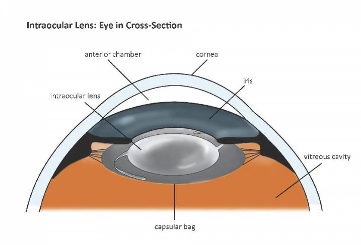 Description Of Cataract Surgery Cataract Surgery Information